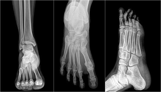 hospital medicine, emergency medicine, rheumatology, rheumatoid arthritis, pain management, surgery, chronic pain, ankle, foot, injury, orthopedics, bones, emergency room, ER