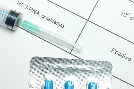 gastroenterology, infectious disease, hepatitis C, HCV, hepatology, RNA