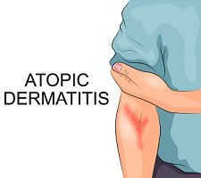 Reviewing Potential Atopic Dermatitis Treatments and Pathogeneses