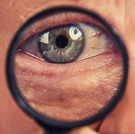 Patients with Noninfectious Uveitis May Be Spared from AMD, Study Shows