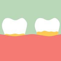Is a Piece of the Rheumatoid Jigsaw Stuck Between Our Teeth?