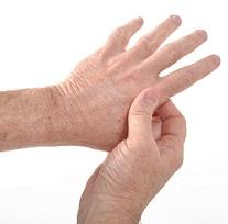 Rheumatoid Arthritis Patients Prioritize Quick Relief Above All Else