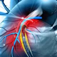 Is Psoriatic Arthritis a Risk Factor for Vascular Disease?