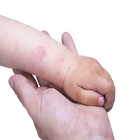 dermatology, atopic dermatitis, AD, eczema, eczema risks, dermatologists, AAD, American Academy of Dermatology, children's health, pediatrics, pediatric medicine, primary care, sleep, internal medicine, external medicine, family medicine, rashes, skin disease, immune health, sleep cycles, risks, press release