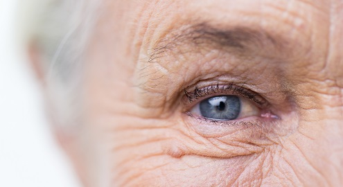age-related macular degeneration, anti-vascular endothelial growth factor agents, exudative, intravitreal injection, neovascular, nutraceutical, nutritional supplement, omega-3 fatty acids, ophthalmology, stabilization, Resvega, retinal structure, trans–resveratrol, visual acuity