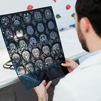 Siponimod Significantly Reduces Disability Progression Risk in SPMS