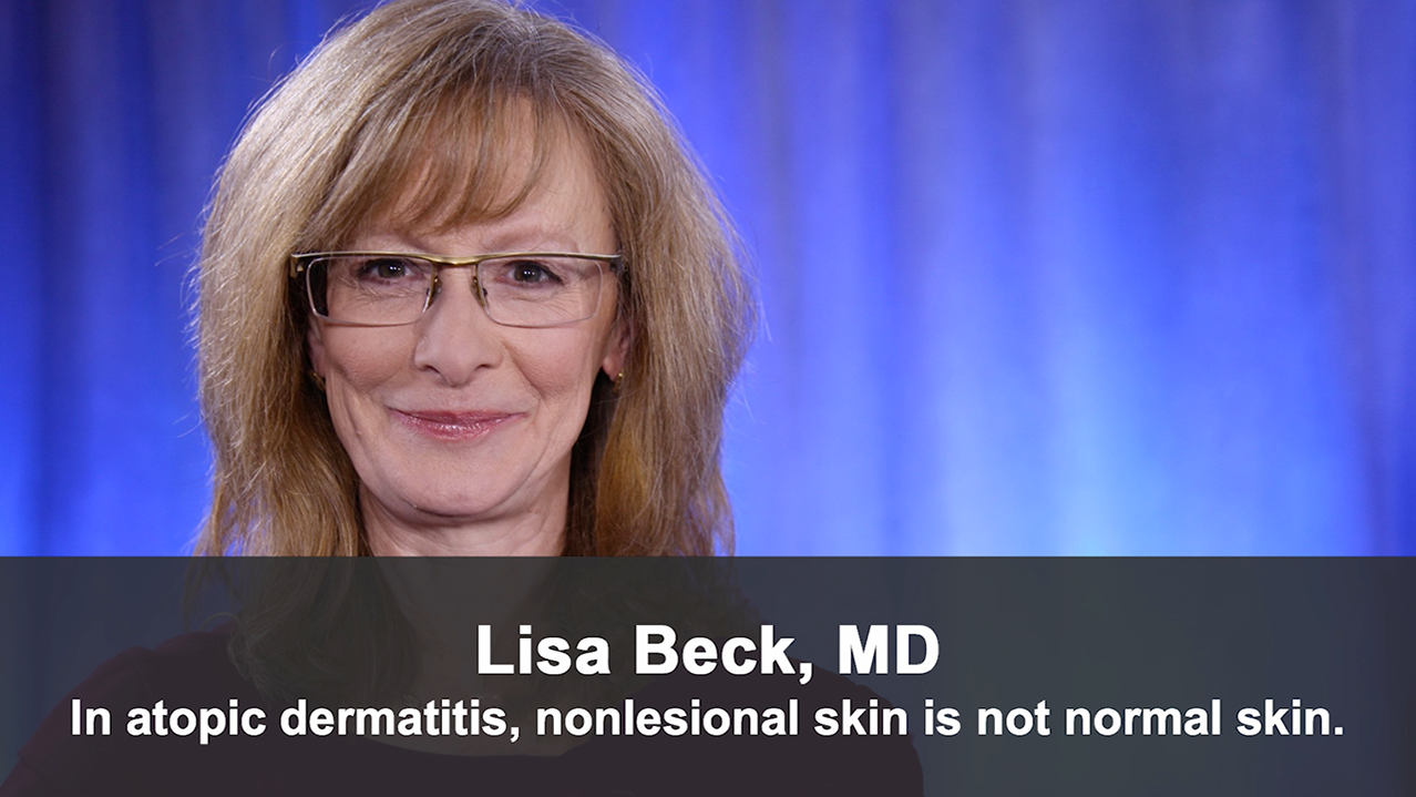 In Atopic Dermatitis, Nonlesional Skin Is Not Normal Skin