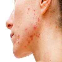 Another Milestone for Acne Vulgaris: New Phase 3 Clinical Trial Begins