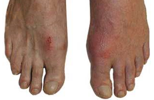 gout pain behind knee what can i do for gout in my big toe of high uric acid xle