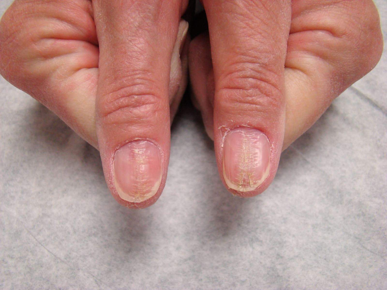 Thumb Nail Deformities in a Mature Woman