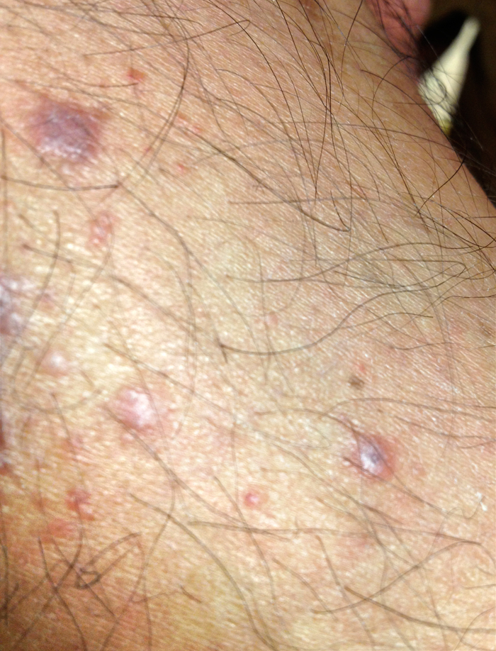 purplish spot on skin