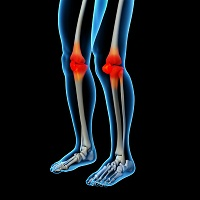Intra-articular Injection of Traumeel and Zeel Reduce Knee Pain in Double-blind Trial