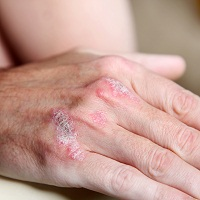 Psoriasis Severity Escalates Risk for Aortic Aneurysm