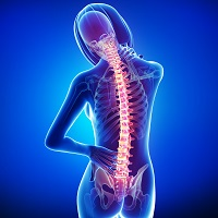 Women With Spondyloarthritis Face Increased Risk of Uveitis, Other Conditions