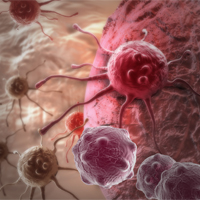 Increased Cancer Risk Associated with Atrial Fibrillation Diagnosis