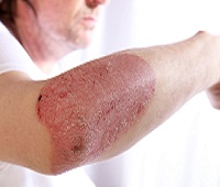 Study Endorses the Efficacy of Immunosuppresants in Multi-Part Psoriasis Treatment