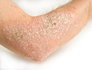 Study Endorses Early TNF Use in Patients with Psoriasis