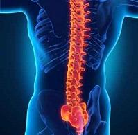 Corrective Spinal Surgery Complications: An Analysis