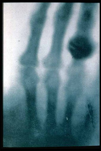 The first ever x-ray, taken by Wilhem Rontgen in 1895, of his wife's hand and wedding ring - HeadStuff.org