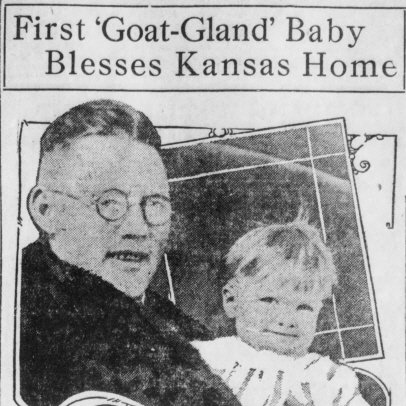 Newspaper coverage of Billy Stittsworth's birth was what put Brinkley on the map, crushed animal testicles, man has son after transplant of goat testicles - HeadStuff.org