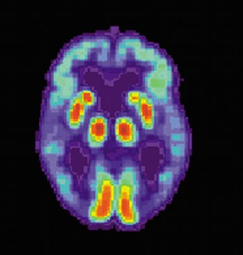 PET scan of brain