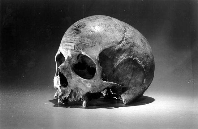 Alexander Pearce's skull - headstuff.org