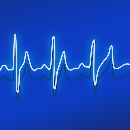 AI-Enabled ECG Helps Identify Heart Failure