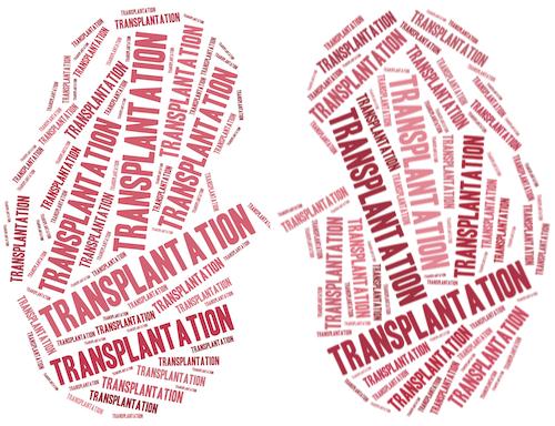 MIT Sloan Professors Develop Data-Based Model for Transplant Decisions