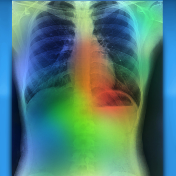 AI Accurately Detects Key Findings in Chest X-Rays in 10 Seconds