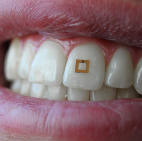 Tooth-Mounted Sensor Offers New Method to Track Diet