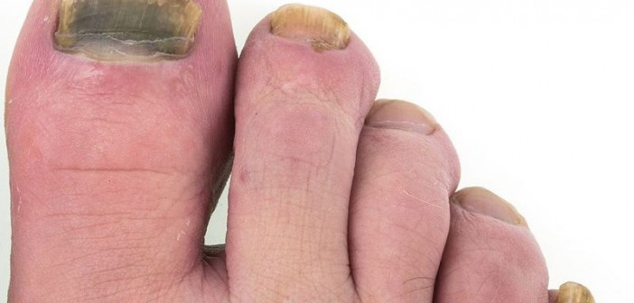 Foot Fungus on the Run … But Race Has a Long Way to Go