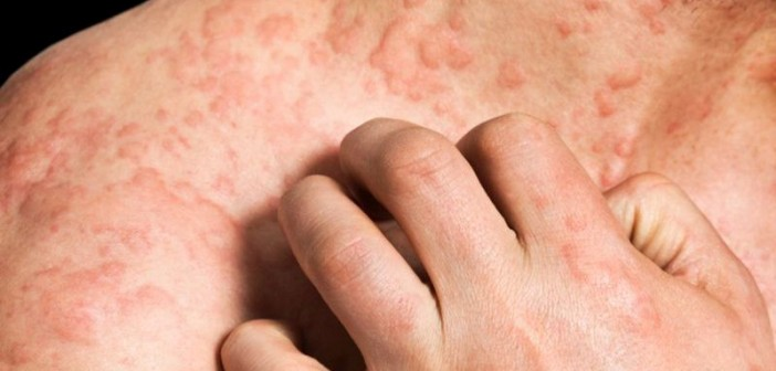 Severe Eczema May Be Linked to Heart Disease Risk