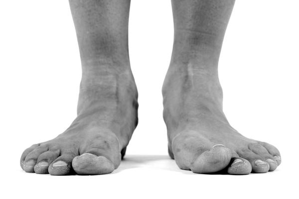 bunion pain while running