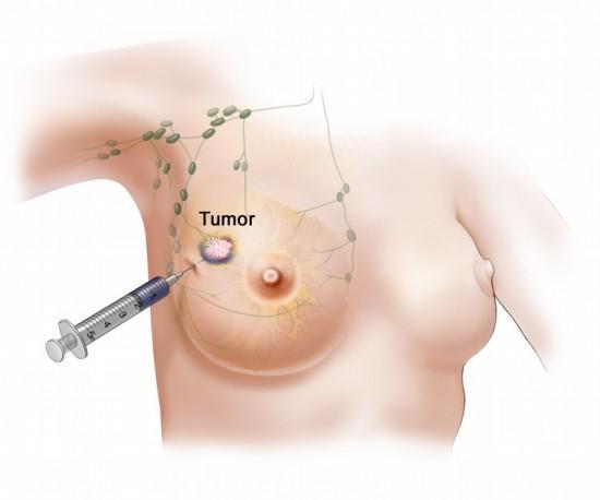 Lumps in breast - Breastfeeding - BabyCenter Australia
