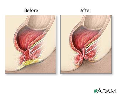 Imperforate Anus Surgery