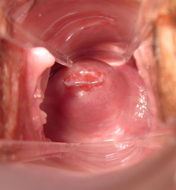 Што такое вагин 4 фотография