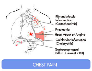 Costochondritis Symptoms. Game Day Signs. Loss Signs Of Stroke. One Tonsil Signs. Croup Signs. Candy Table Signs Of Stroke. East Side Signs Of Stroke. Graph Signs Of Stroke. Human Lungs Signs