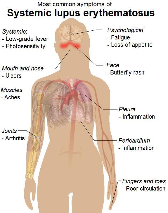 ANA (Antinukleäre Antikörper) - Übersicht
