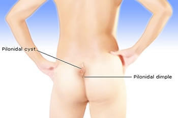 Bump On Tailbone
