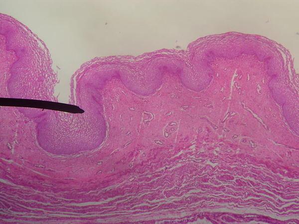 Bump Near Vulva