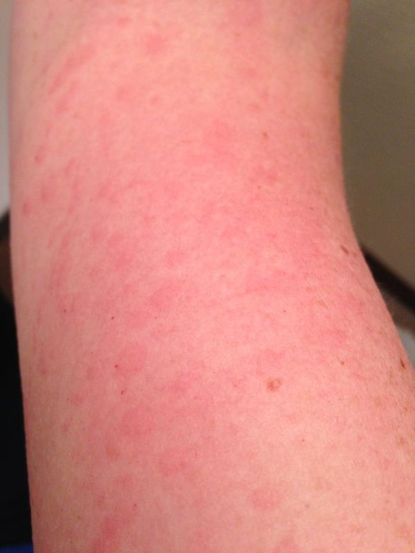 rash with pneumonia