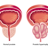 Prostatic_hypertrophy