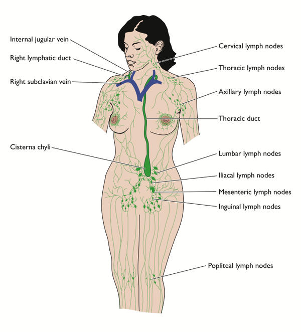 Lymphedema Of The Leg Leg And Inguinal Lymph Nodes