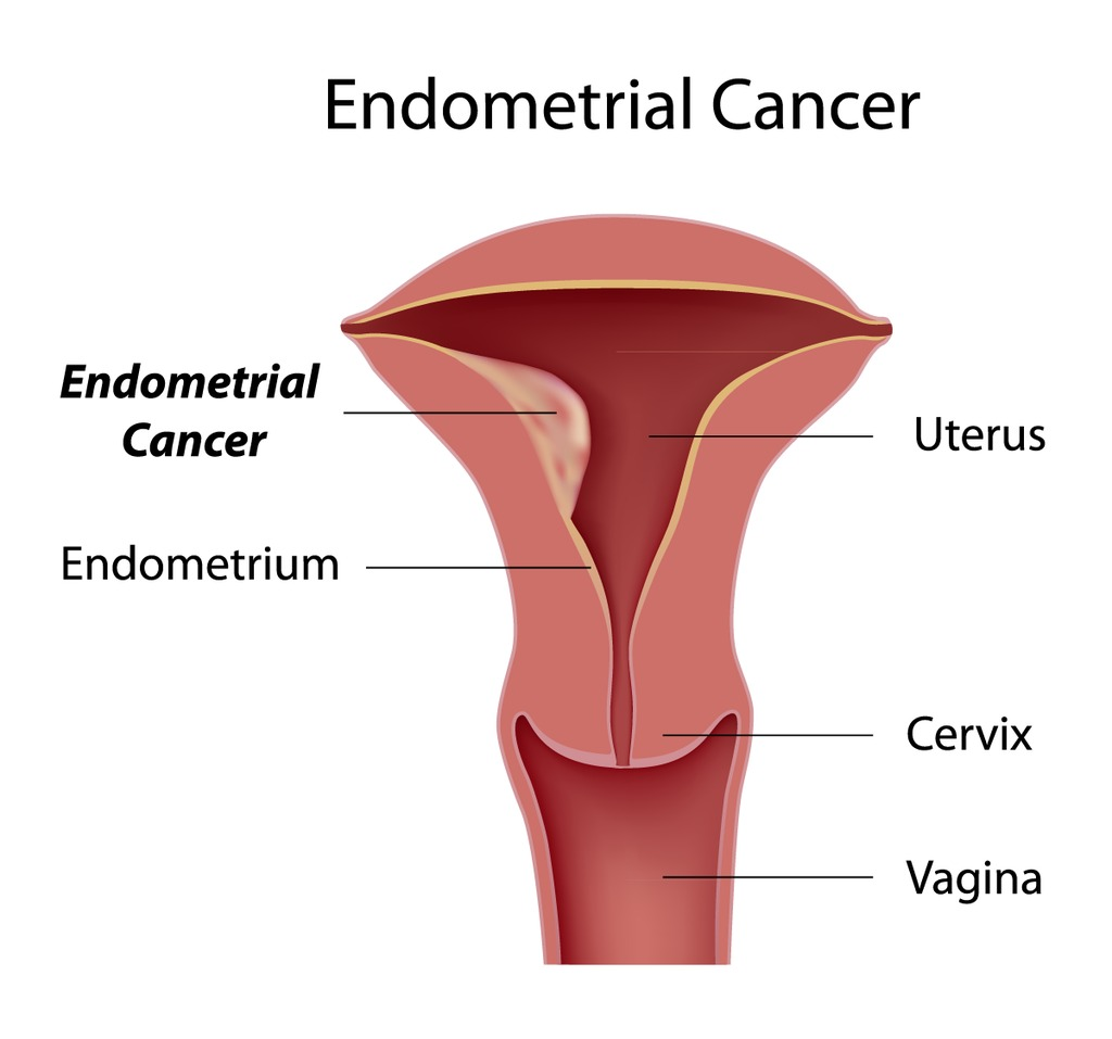 endometrial cancer - doctor answers on healthtap, Human Body