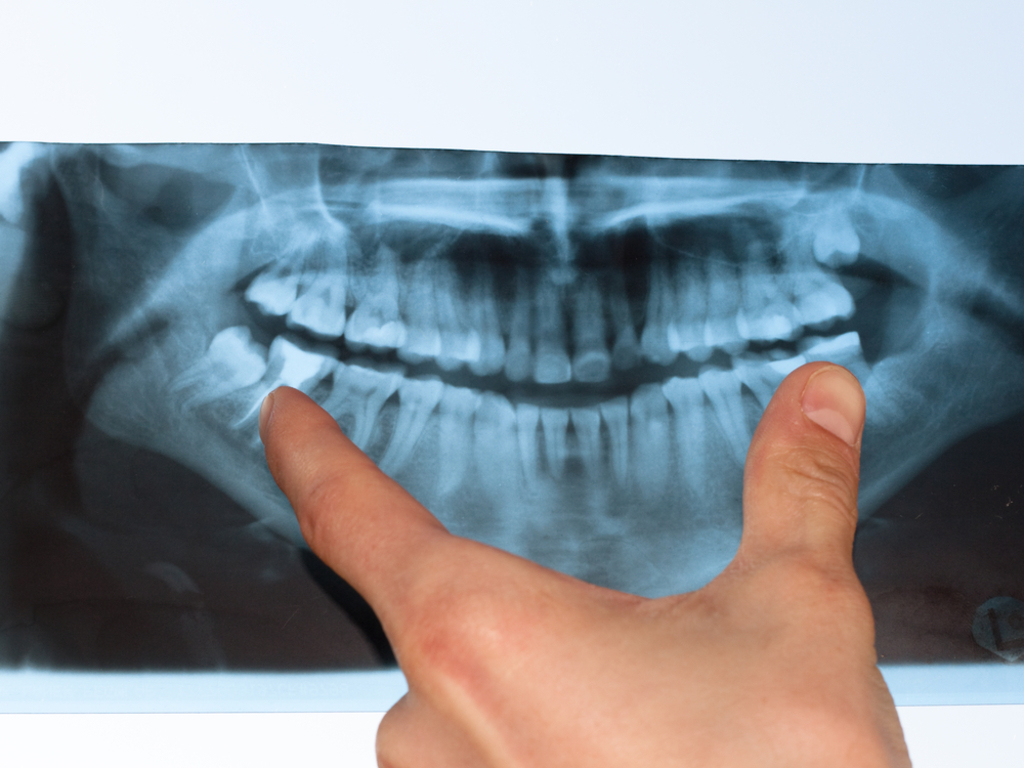 how to know if your jaw is dislocated
