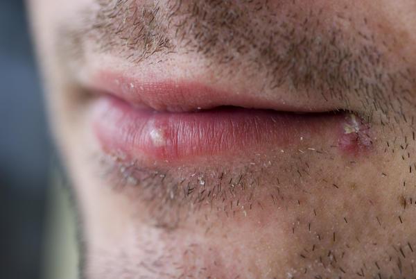 Water Blister Lip 88