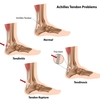 Achilles_tendon_injury