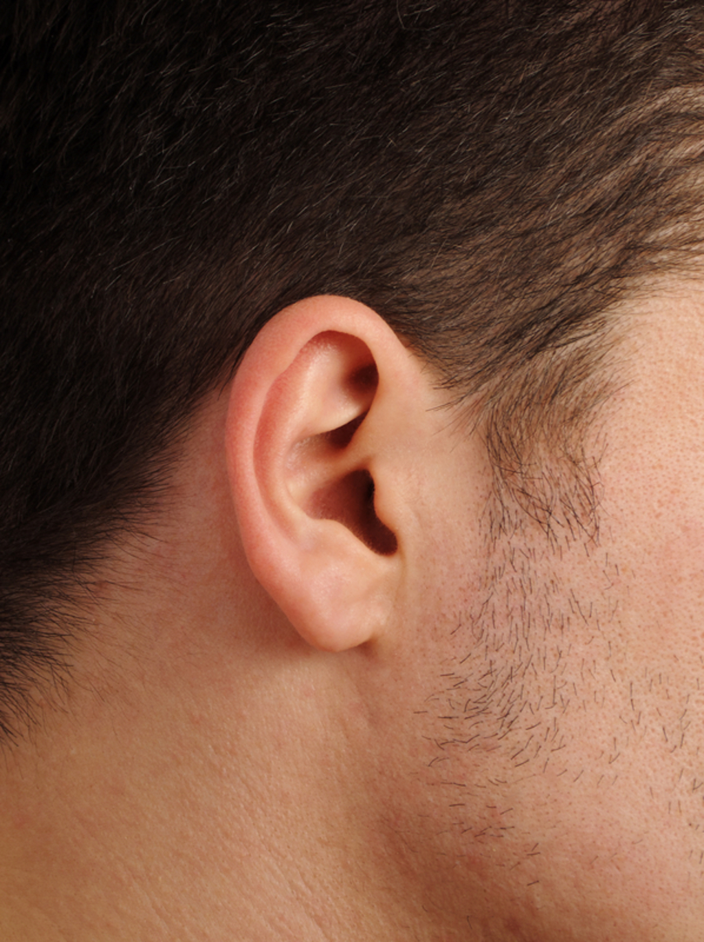 Protruding Ears - Doctor answers on HealthTap