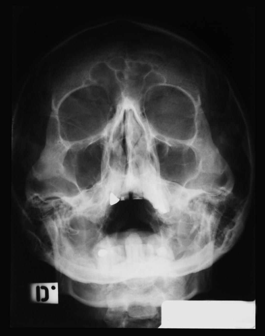 sinusitis x rays - Selo.l-ink.co