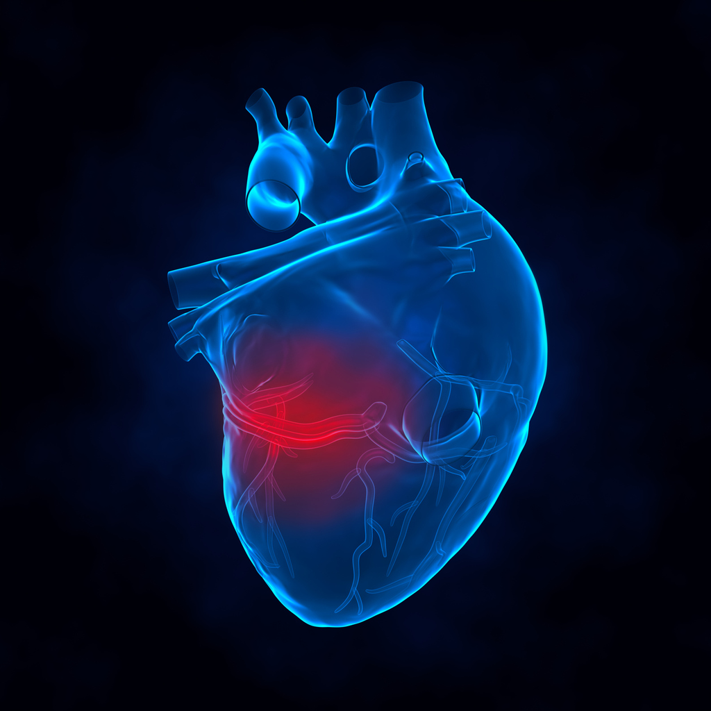 myocardial infaraction What is myocardial infarction or ischaemic heart disease acute myocardial infarction (ami), commonly known as a heart attack, is the interruption of blood supply to a part of the heart, causing.